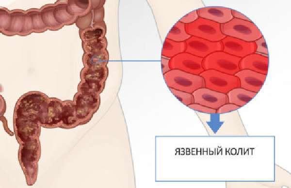 Факторы риска в возникновении аденокарциномы – симптомы аденокарциномы и прогноз
