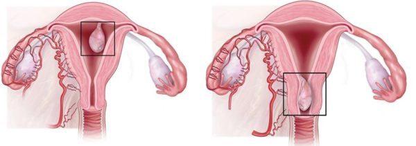 Удаление полипа в матке – методы удаления, реабилитация и последствия операции