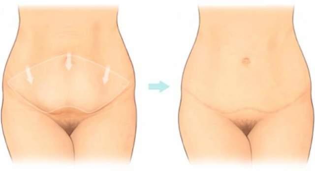 Абдоминопластика – показания к операции, видео пластики живота, реабилитация