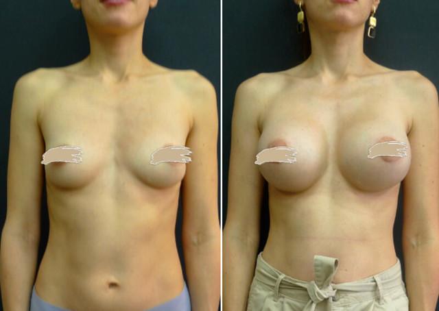 Маммопластика – показания и противопоказания, виды пластики груди, цены на маммопластику