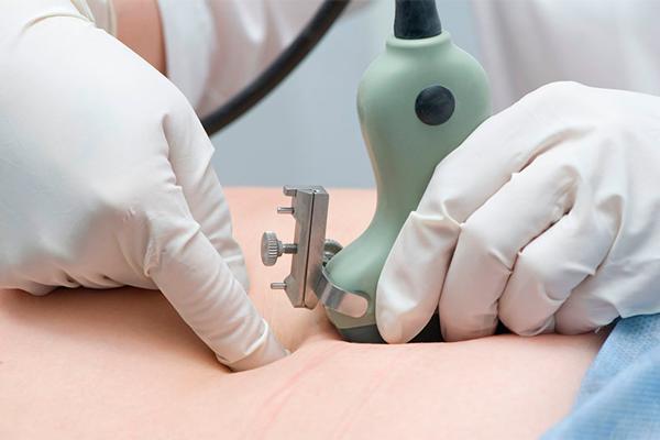 Пренатальная диагностика – инвазивные и неинвазивные методы