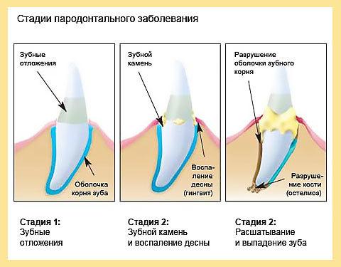 Пародонтит – причины, симптомы, виды и методы лечения пародонтита