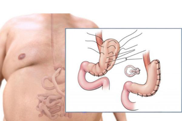 Все виды операций по уменьшению желудка - кому и когда они показаны?