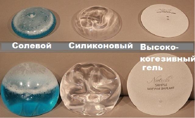 Разработаны новые грудные импланты для маммопластики, заменяющие бюстгальтер