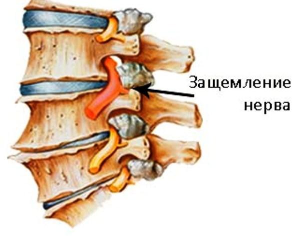 Диагностика и лечение травм спинного мозга - современный подход