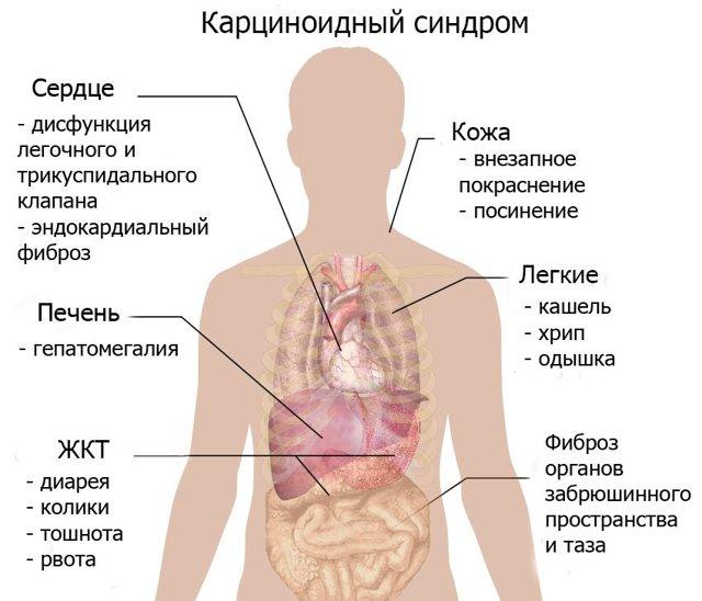 Эндокринные опухоли – лечение и диагностика, прогноз