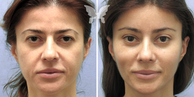 Эндоскопическая подтяжка лица – плюсы и минусы эндоскопического фейслифтинга