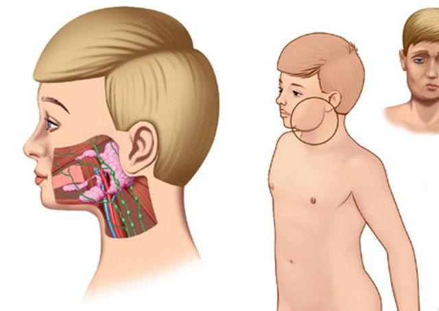 Лечение воспалений слюнных желез сегодня – терапия и операции при сиалоадените