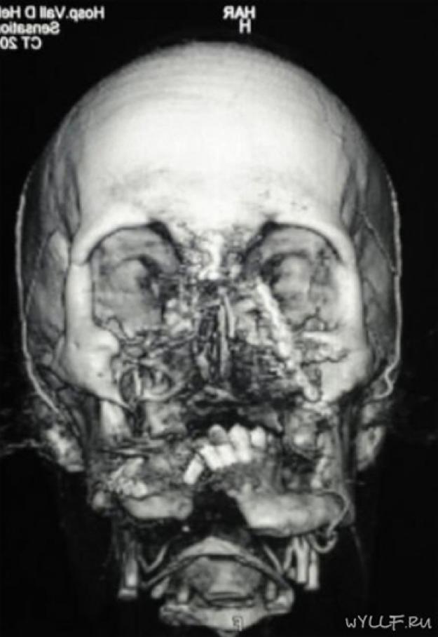 Впервые в мире робот-хирург провел пластическую операцию