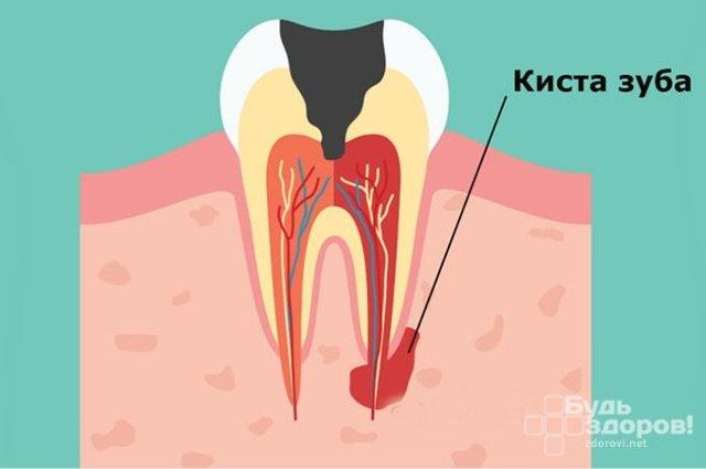 Причины и симптомы кисты зуба – как определить и чем опасно заболевание?