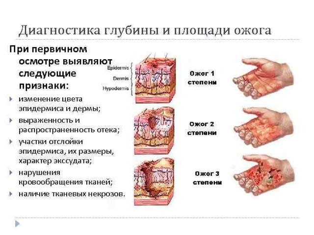 Лечение и диагностика некроза – стадии и методы лечения некроза