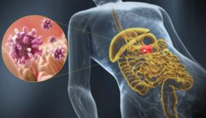 Гастроскопия желудка – все о методе исследования желудочно-кишечного тракта