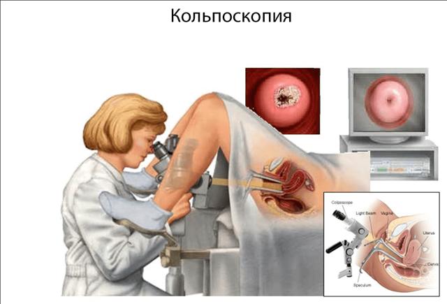 Кольпоскопия шейки матки – как проводится процедура колькоскопии и где ее можно сделать