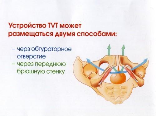 Хирургическое лечение недержания мочи у детей и взрослых