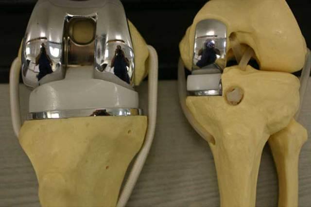 Операция по замене коленного сустава - показания и противопоказания