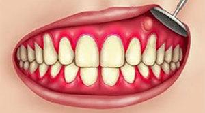 Причины свища на десне – методы стоматологического и домашнего лечения свища зуба