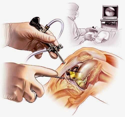 Артроскопия - как выполняется, показания к диагностике сустава и последствия