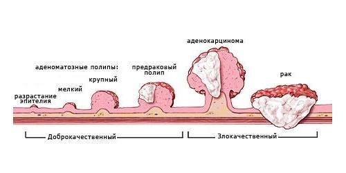 Полипы толстой кишки – симптомы заболевания, диагностика и лечение