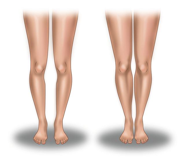 Круропластика - что это такое, плюсы и минусы коррекции голеней, результат