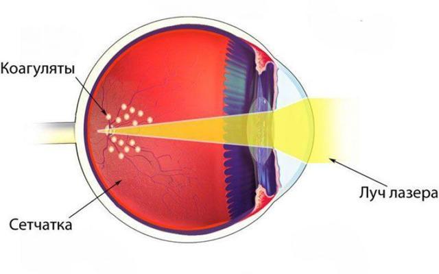 Оперативное лечение глаз лазером - показания к лазерной циклокоагуляции глаза