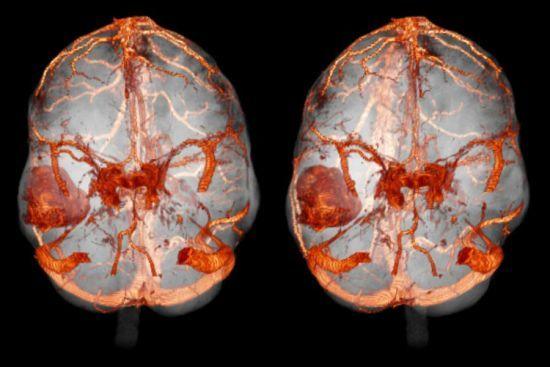 Что такое МРТ – показания и противопоказания к магнитно-резонансной томографии, стоимость МРТ