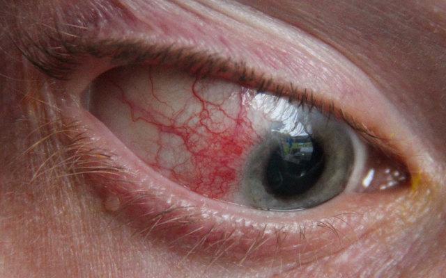 Причины склерита глаза у детей и взрослых — виды склерита и симптомы заболевания