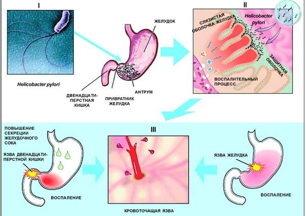 Язвенная болезнь желудка – признаки, симптомы, когда к врачу