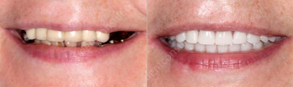 Экспресс-имплантация зубов – отзывы пациентов и обзор примерных цен