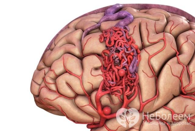 Артериовенозная мальформация мозга – причины, симптомы, последствия