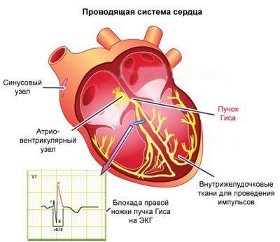 Причины блокады сердца у детей - первая помощь при кардиоблокадах у ребенка