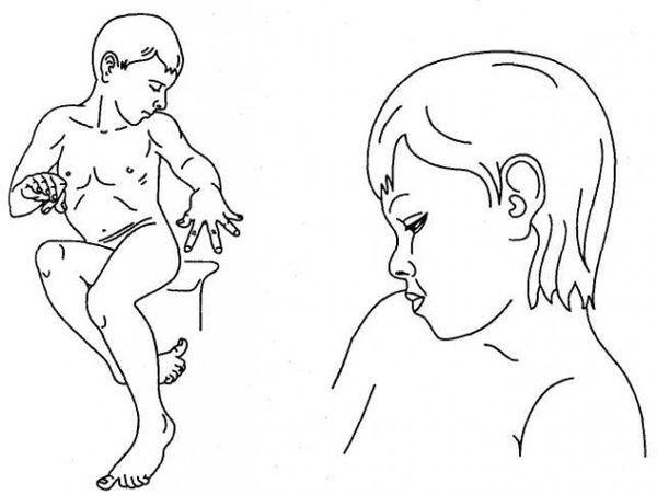 Причины кривошеи у взрослых и детей – симптомы кривошеи и современные методы диагностики