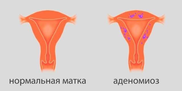 Симптомы эндометриоза матки и яичников на УЗИ – как точно определить эндометриоз