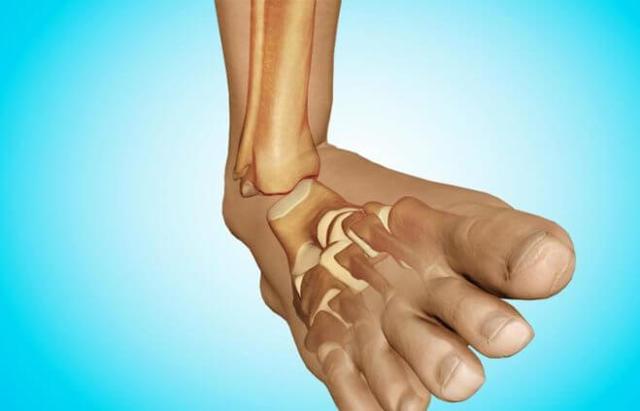Перелом голеностопного сустава – причины, симптомы переломов голеностопа и первая помощь пострадавшему