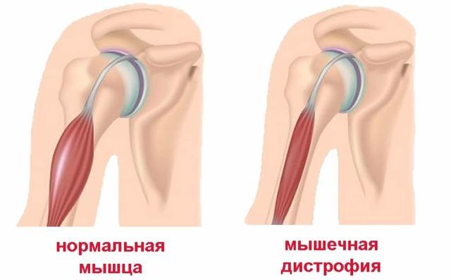 Диагноз миопатия мышц - симптомы и лечение миопатии, основные причины