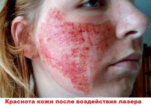 Плюсы и минусы лазерного лифтинга лица – процедура подтяжки лица лазером