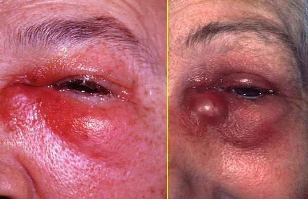 Флегмона слёзного мешка – вскрытие флегмоны