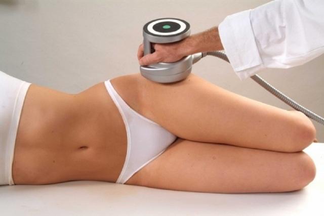 Липосакция живота. Фото до и после, цена операции, лазерная, ультразвуковая липосакция для мужчин, женщин. Видео, отзывы