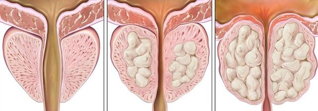 Причины и симптомы аденомы предстательной железы – диагностика