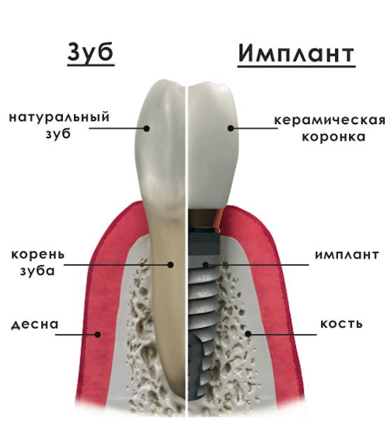 Протезирование на имплантах – виды, этапы и цена протезирования на имплантах