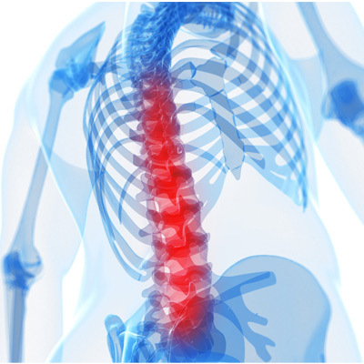 Симптомы спонтанных спинальных эпидуральных гематом - лечение, последствия