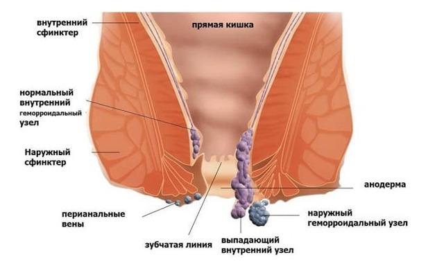 Современные методы лечения геморроя - когда нужна операция при геморрое