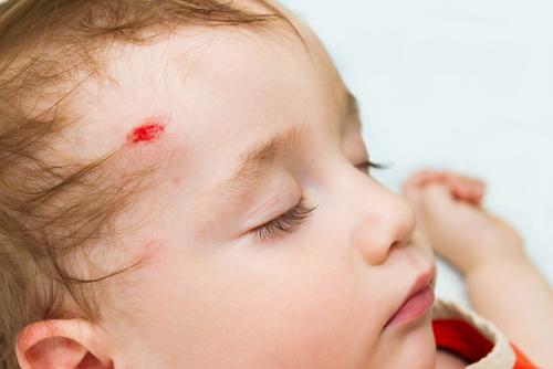 Ребенок упал и ударился, что делать: первая помощь и лечение травм при падении