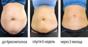 Криолиполиз, или удаление жира замораживанием – этапы выполнения, показания к криолипосакции и результат
