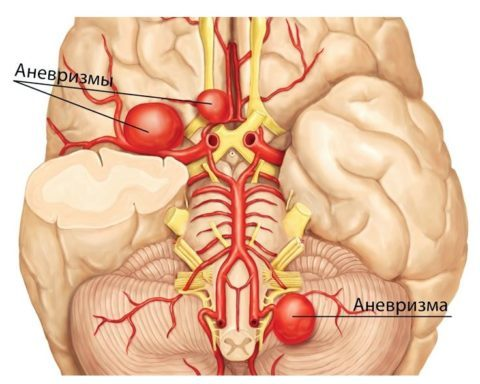 Причины аневризмы мозга, классификация аневризм головного мозга
