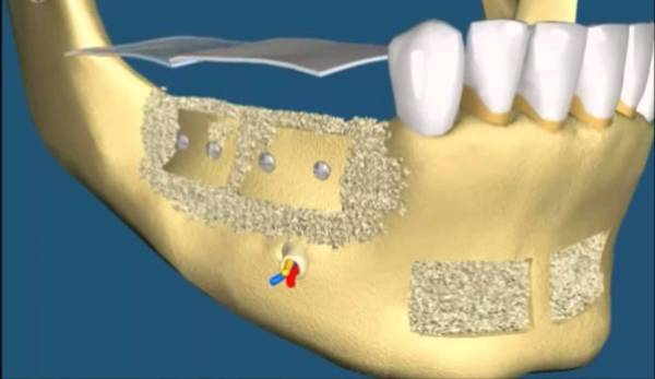 Коррекция альвеолярного отростка верхней и нижней челюсти – виды дефектов альвеолярного гребня