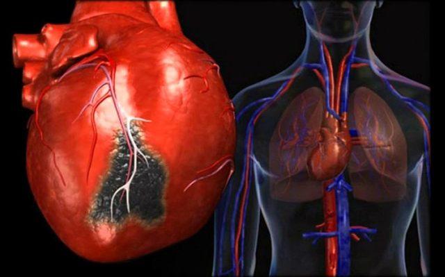 Причины и симптомы миокардита – основные риски поражения миокарда