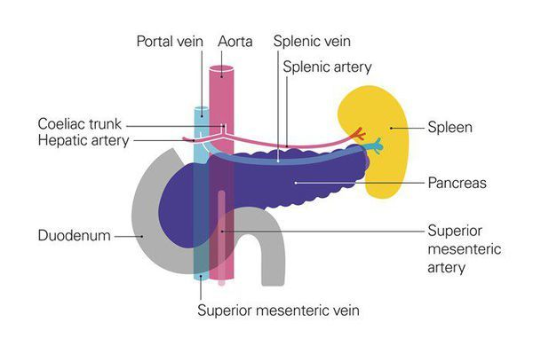 Рак поджелудочной железы – симптомы, причины возникновения, стадии и диагностика заболевания