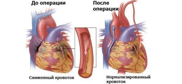 Атипичные формы инфаркта миокарда – симптомы и диагностика