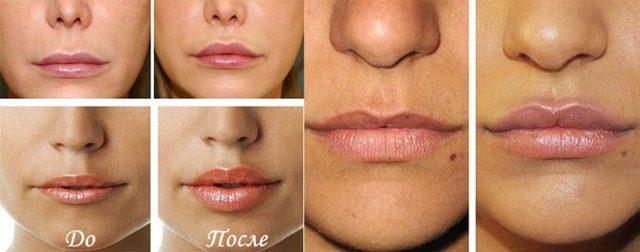 Виды пластики губ – показания к хейлопластике и результаты операции