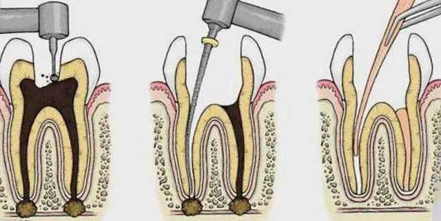 Депульпирование - видео этапов, последствия удаления пульпы зуба, цена